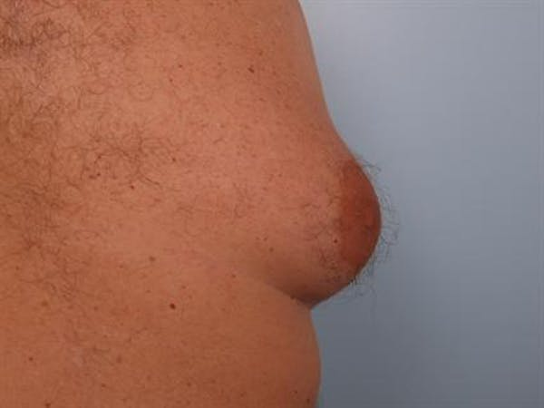 Male Breast/Areola Reduction Gallery - Patient 1310984 - Image 5