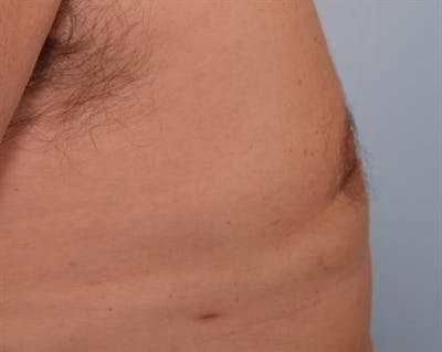 Male Breast/Areola Reduction Gallery - Patient 1310984 - Image 6