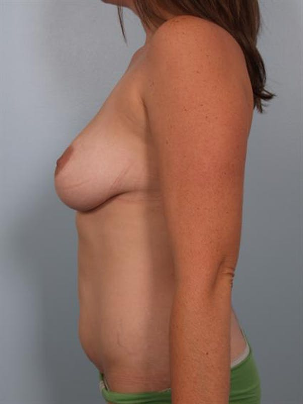 Power Assisted Liposuction Gallery - Patient 1310986 - Image 3
