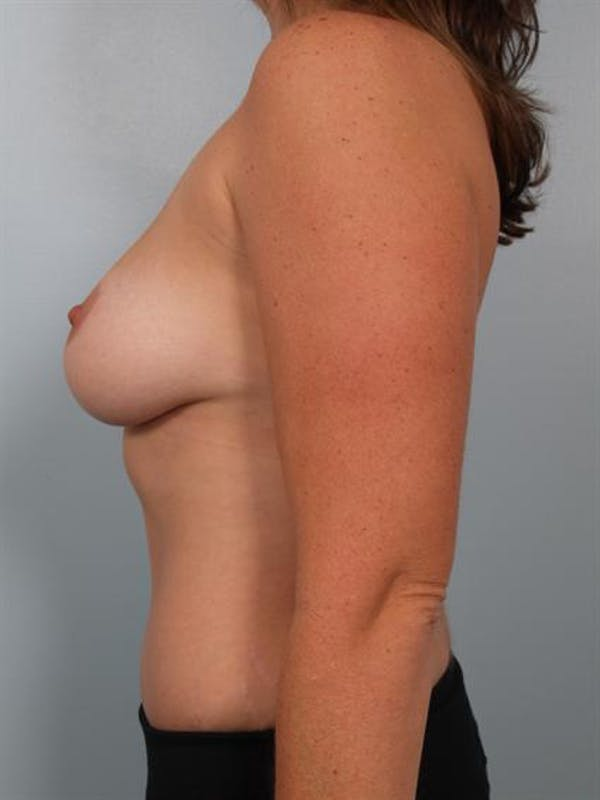 Power Assisted Liposuction Gallery - Patient 1310986 - Image 4