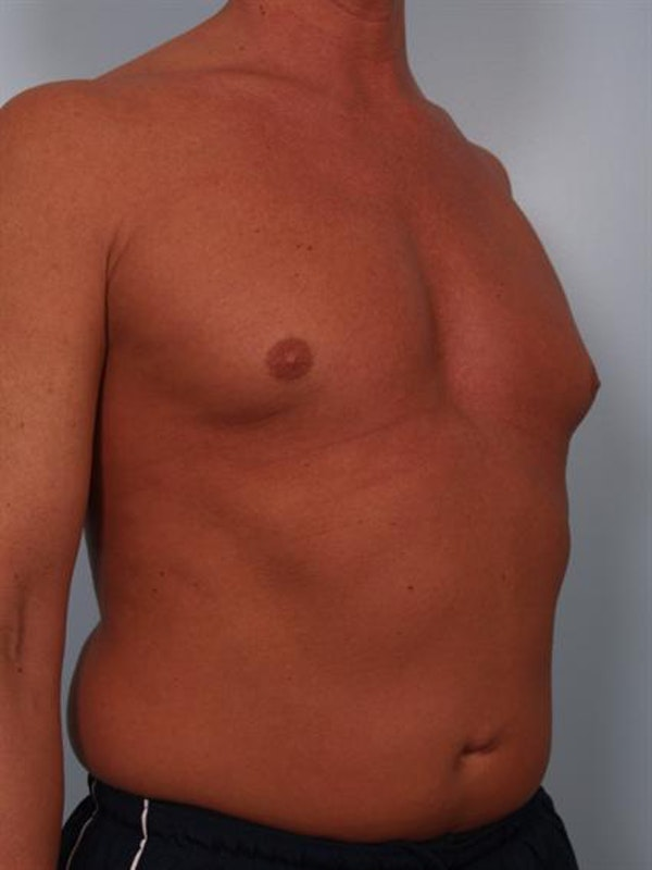 Male Breast/Areola Reduction Gallery - Patient 1310991 - Image 1