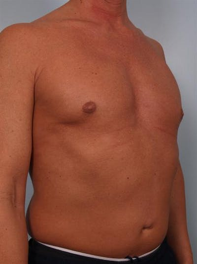 Male Breast/Areola Reduction Gallery - Patient 1310991 - Image 2