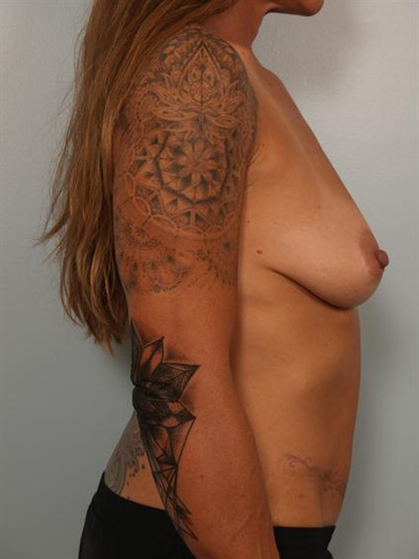 Breast Lift Gallery - Patient 1310989 - Image 3