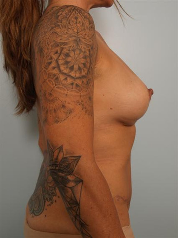 Breast Lift Gallery - Patient 1310989 - Image 4