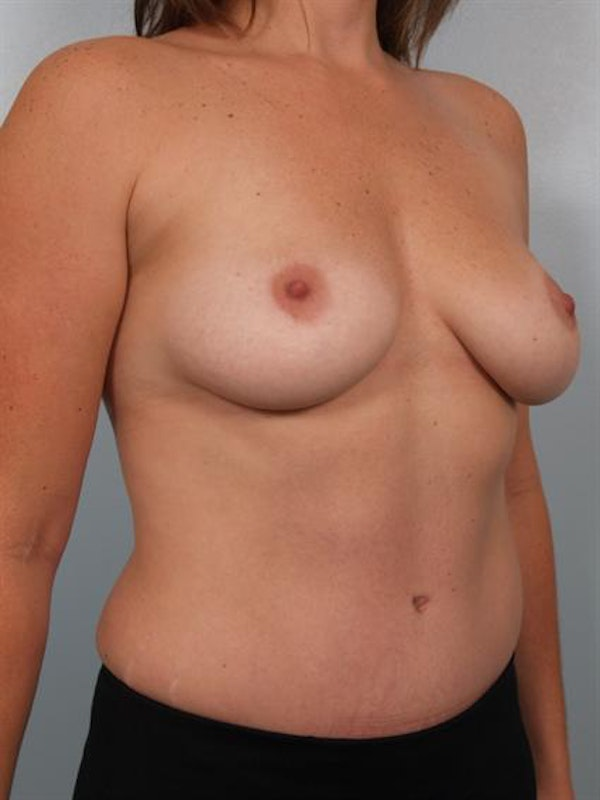 Power Assisted Liposuction Gallery - Patient 1310986 - Image 6