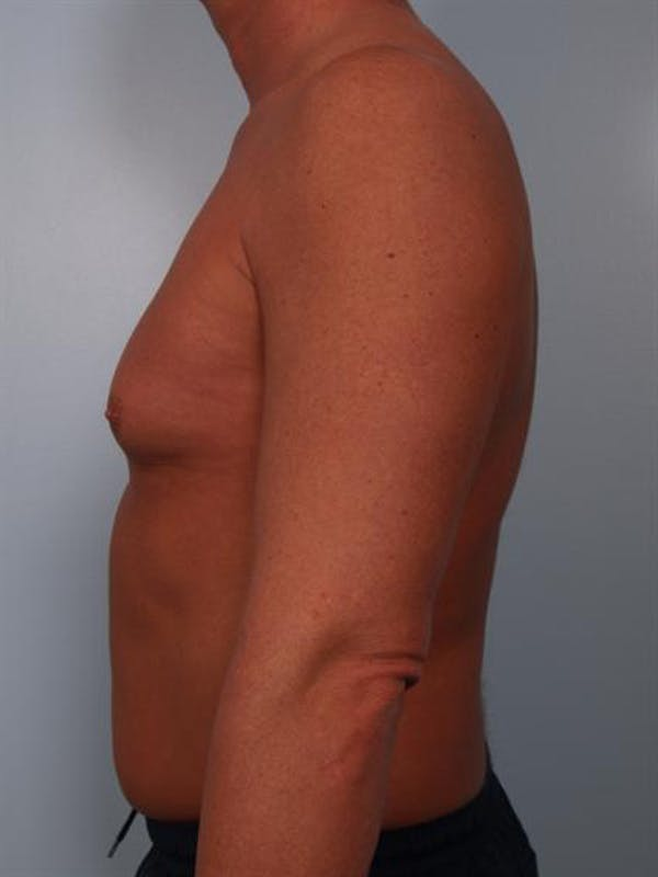 Male Breast/Areola Reduction Gallery - Patient 1310991 - Image 3
