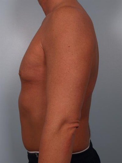 Male Breast/Areola Reduction Gallery - Patient 1310991 - Image 4