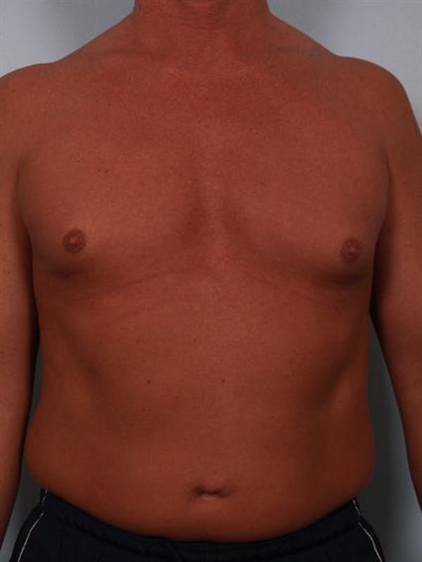 Male Breast/Areola Reduction Gallery - Patient 1310991 - Image 5