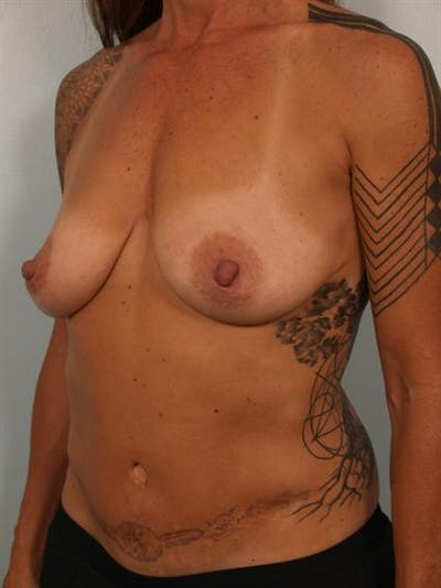 Breast Lift Gallery - Patient 1310989 - Image 1