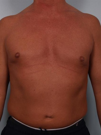 Male Breast/Areola Reduction Gallery - Patient 1310991 - Image 6