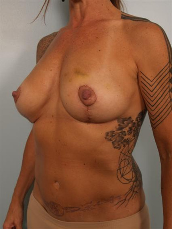 Breast Lift Gallery - Patient 1310989 - Image 2