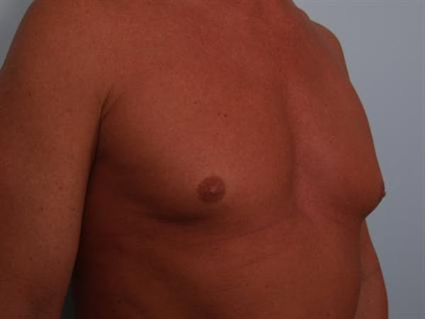 Male Breast/Areola Reduction Gallery - Patient 1310991 - Image 7