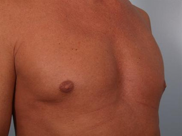 Male Breast/Areola Reduction Gallery - Patient 1310991 - Image 8
