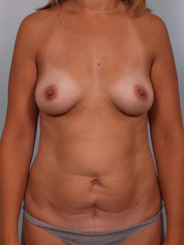 Tummy Tuck Gallery - Patient 1310994 - Image 1