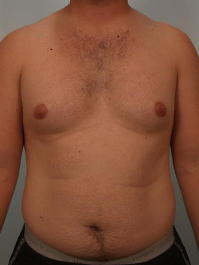 Male Breast/Areola Reduction Gallery - Patient 1310992 - Image 1