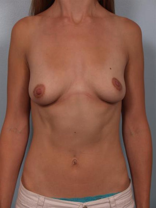 Breast Lift Gallery - Patient 1310996 - Image 1