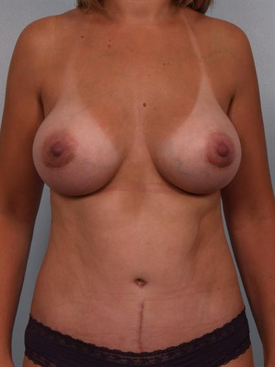 Tummy Tuck Gallery - Patient 1310994 - Image 2