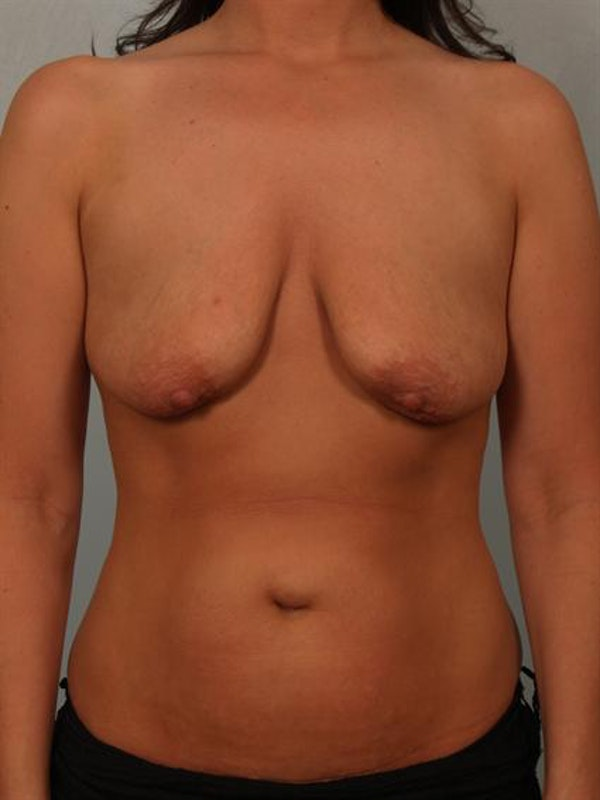 Breast Augmentation Gallery - Patient 1310995 - Image 3