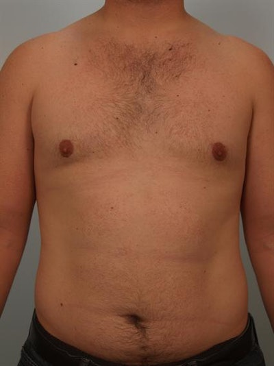 Male Breast/Areola Reduction Gallery - Patient 1310992 - Image 2