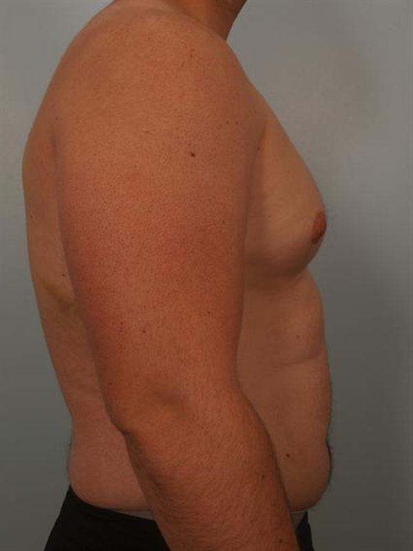 Male Breast/Areola Reduction Gallery - Patient 1310992 - Image 3