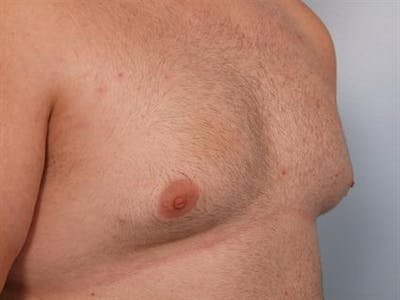 Male Breast/Areola Reduction Gallery - Patient 1310997 - Image 1