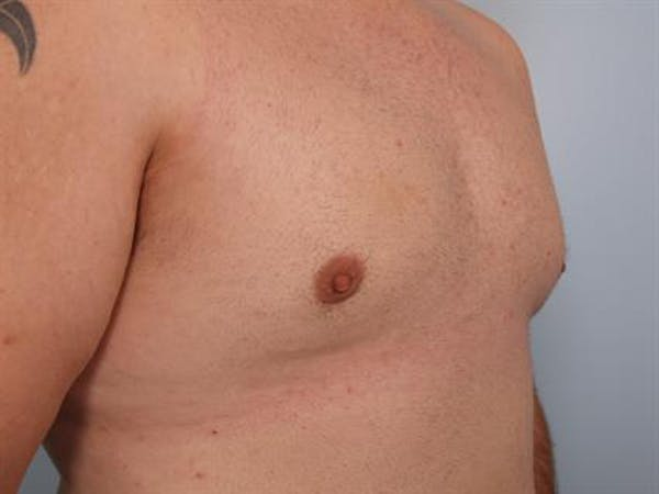 Male Breast/Areola Reduction Gallery - Patient 1310997 - Image 2