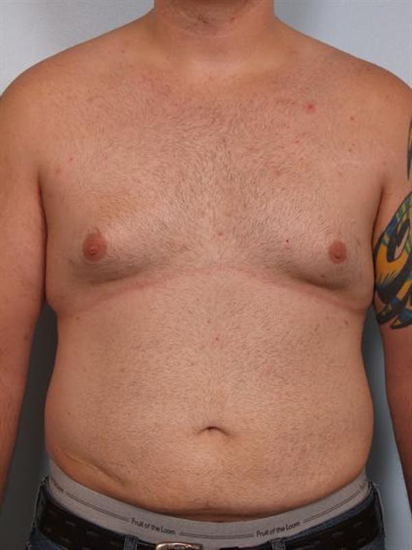 Male Breast/Areola Reduction Gallery - Patient 1310997 - Image 3