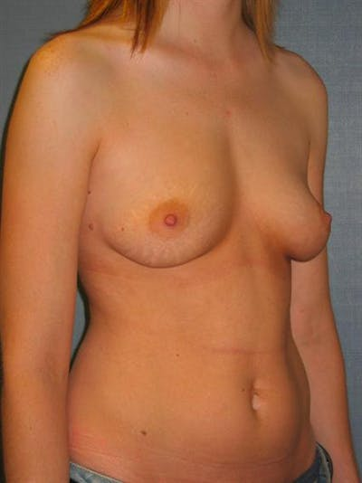 Breast Augmentation Gallery - Patient 1310999 - Image 1