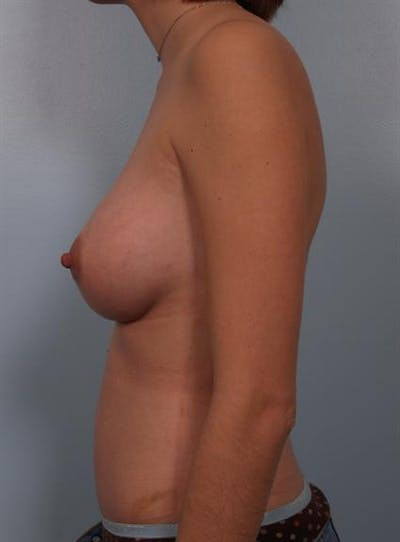 Power Assisted Liposuction Gallery - Patient 1310998 - Image 2