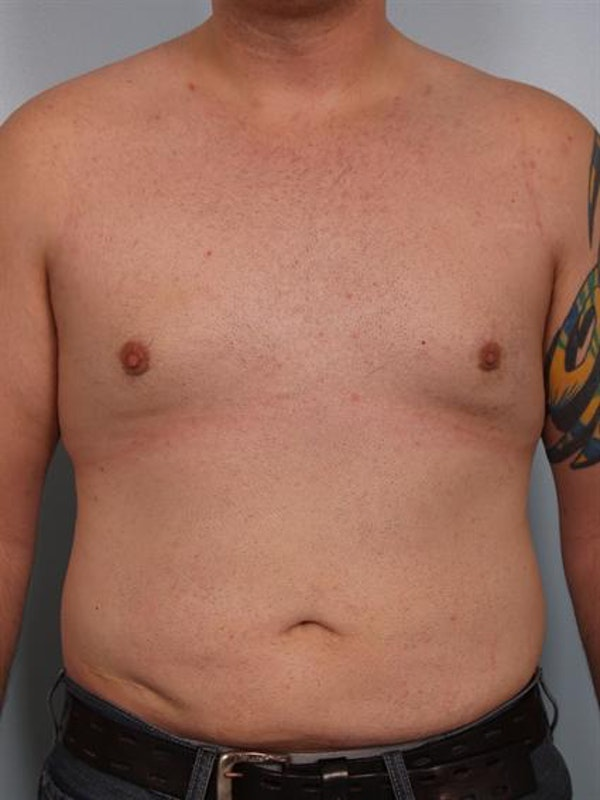 Male Breast/Areola Reduction Gallery - Patient 1310997 - Image 4