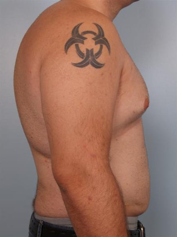 Male Breast/Areola Reduction Gallery - Patient 1310997 - Image 5