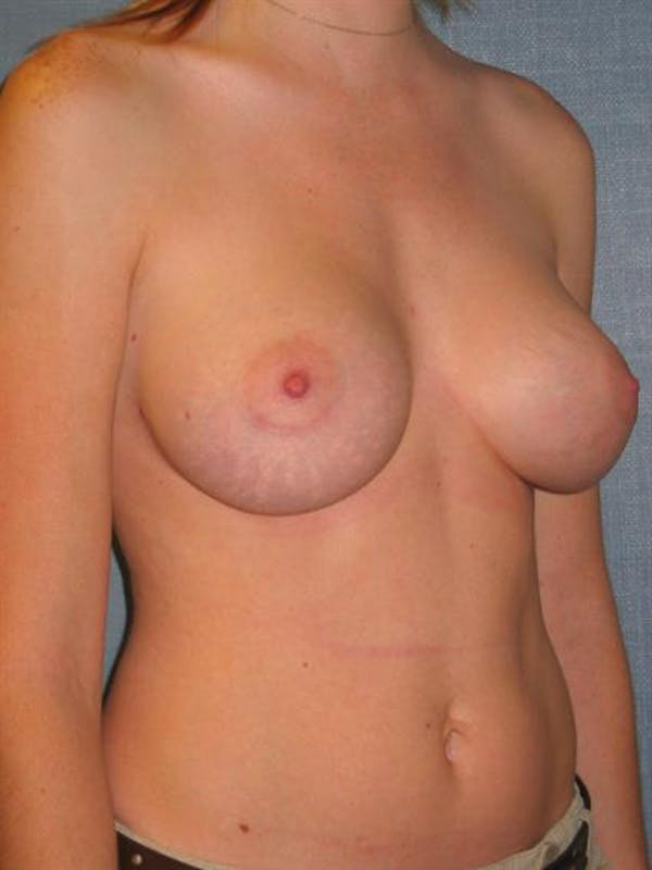 Breast Augmentation Gallery - Patient 1310999 - Image 2