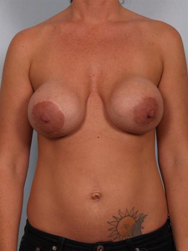 Breast Lift Gallery - Patient 1311001 - Image 1