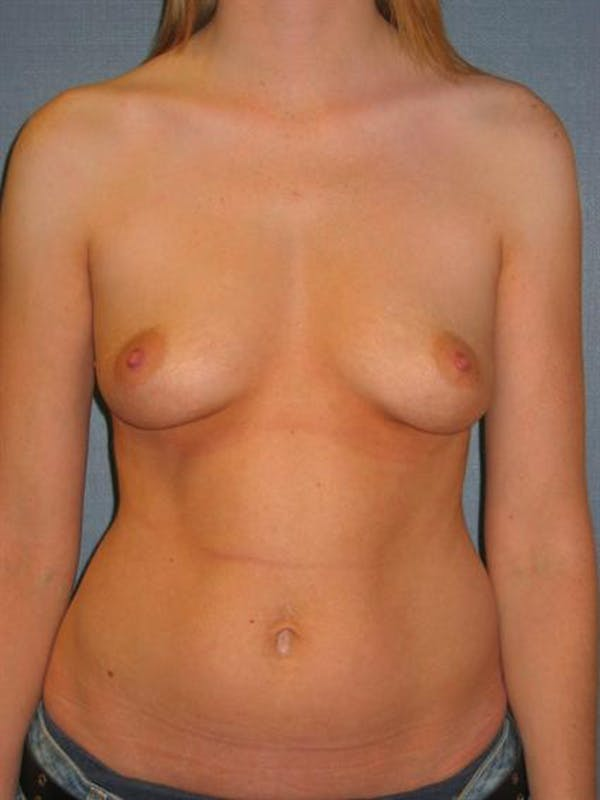 Breast Augmentation Gallery - Patient 1310999 - Image 3