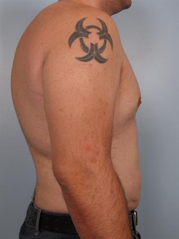 Male Breast/Areola Reduction Gallery - Patient 1310997 - Image 6