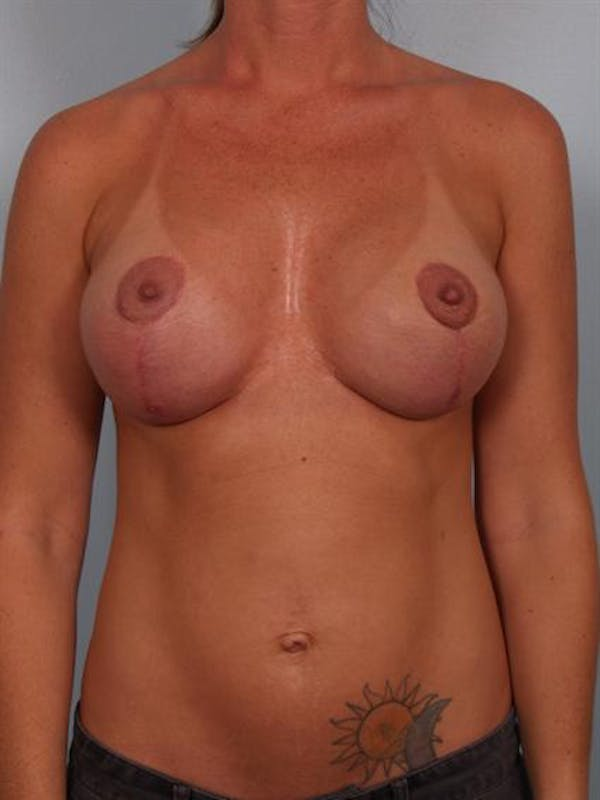 Breast Lift Gallery - Patient 1311001 - Image 2