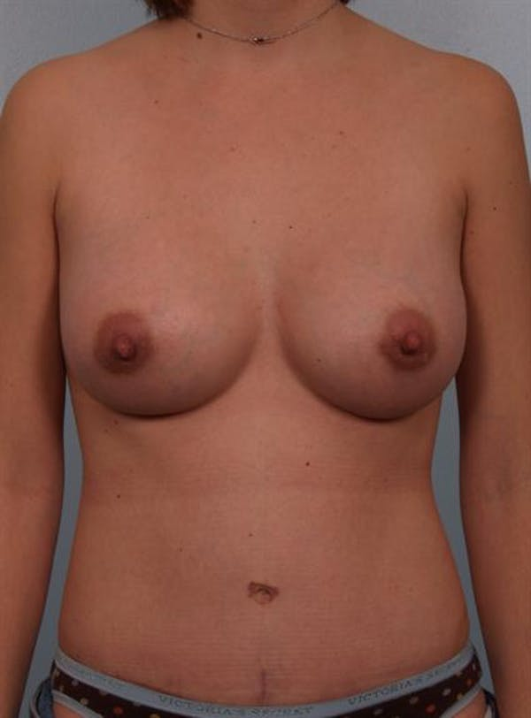 Power Assisted Liposuction Gallery - Patient 1310998 - Image 6