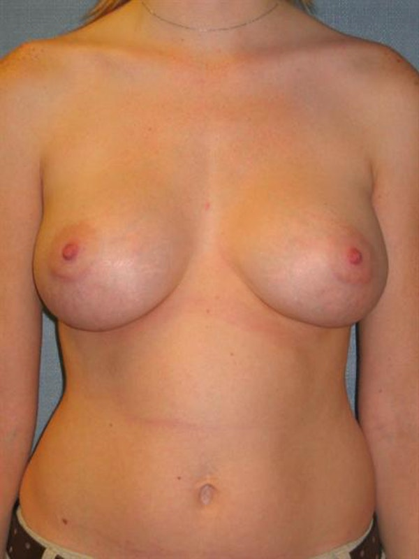 Breast Augmentation Gallery - Patient 1310999 - Image 4