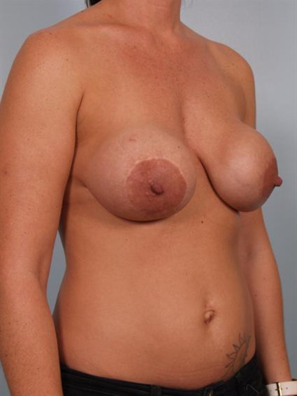 Breast Lift Gallery - Patient 1311001 - Image 3