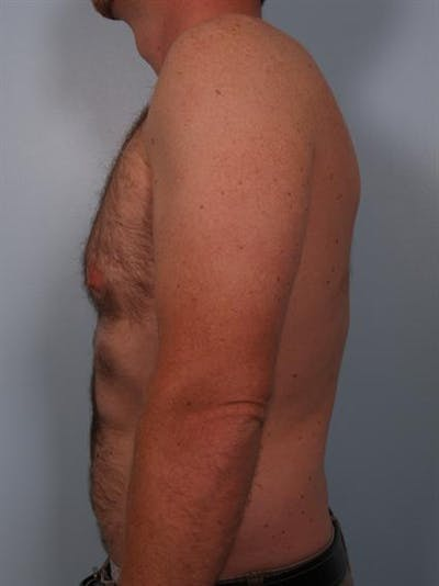 Male Breast/Areola Reduction Gallery - Patient 1311002 - Image 1