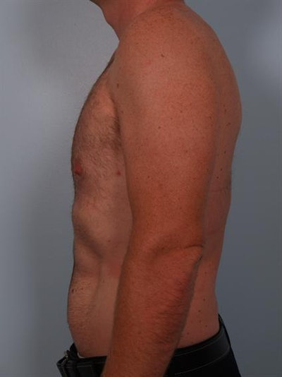 Male Breast/Areola Reduction Gallery - Patient 1311002 - Image 2
