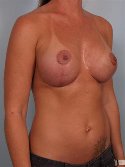 Breast Lift Gallery - Patient 1311001 - Image 4