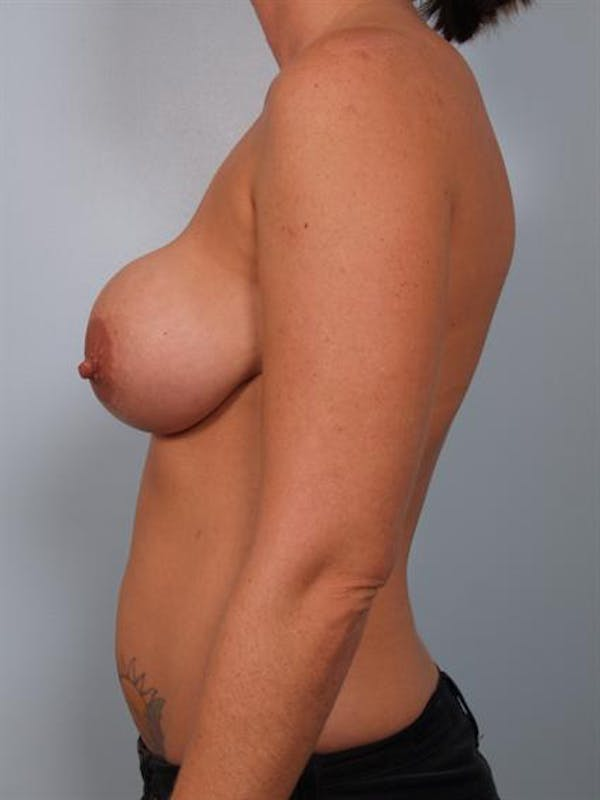 Breast Lift Gallery - Patient 1311001 - Image 5