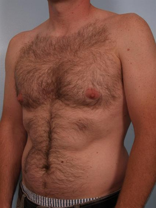 Male Breast/Areola Reduction Gallery - Patient 1311002 - Image 3