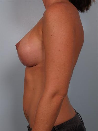 Breast Lift Gallery - Patient 1311001 - Image 6