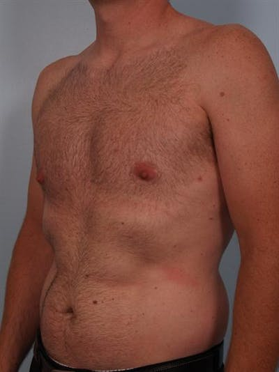 Male Breast/Areola Reduction Gallery - Patient 1311002 - Image 4
