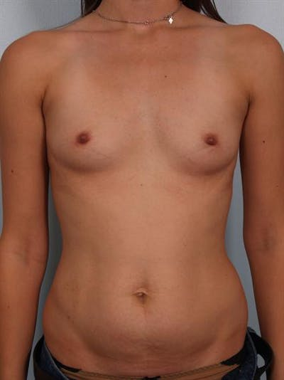 Breast Augmentation Gallery - Patient 1311004 - Image 1