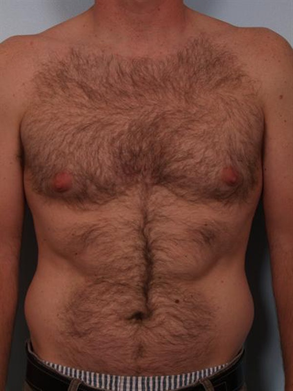 Male Breast/Areola Reduction Gallery - Patient 1311002 - Image 5