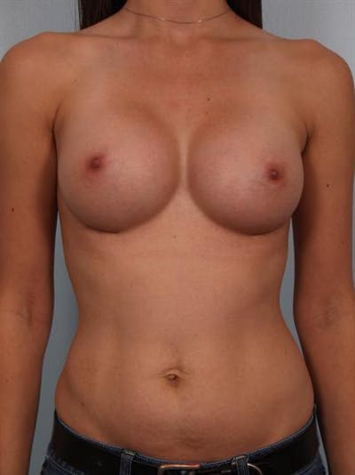 Breast Augmentation Gallery - Patient 1311004 - Image 2