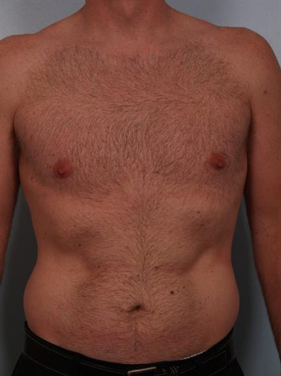 Male Breast/Areola Reduction Gallery - Patient 1311002 - Image 6